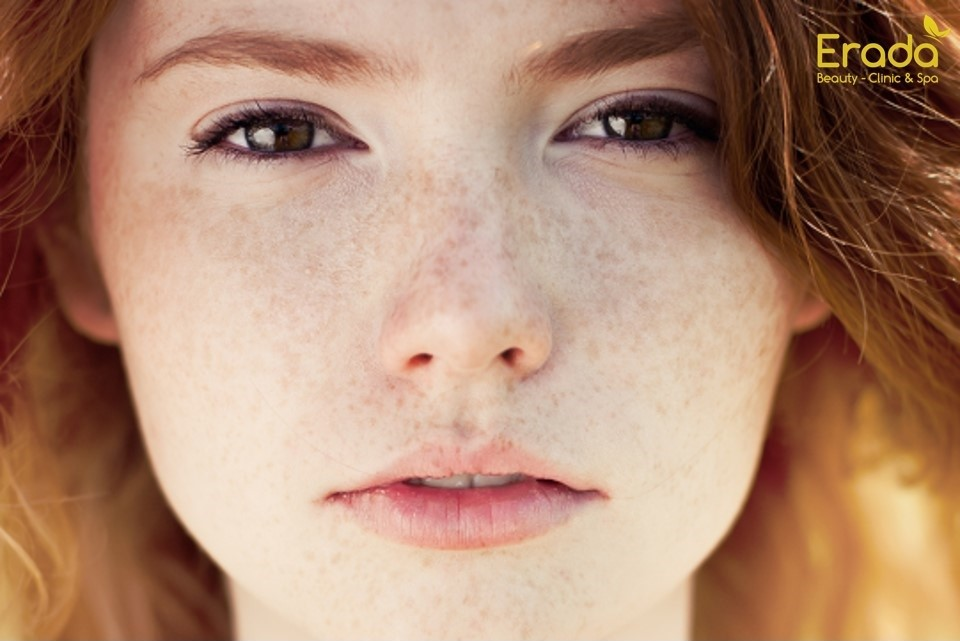 nám da và tàn nhang
