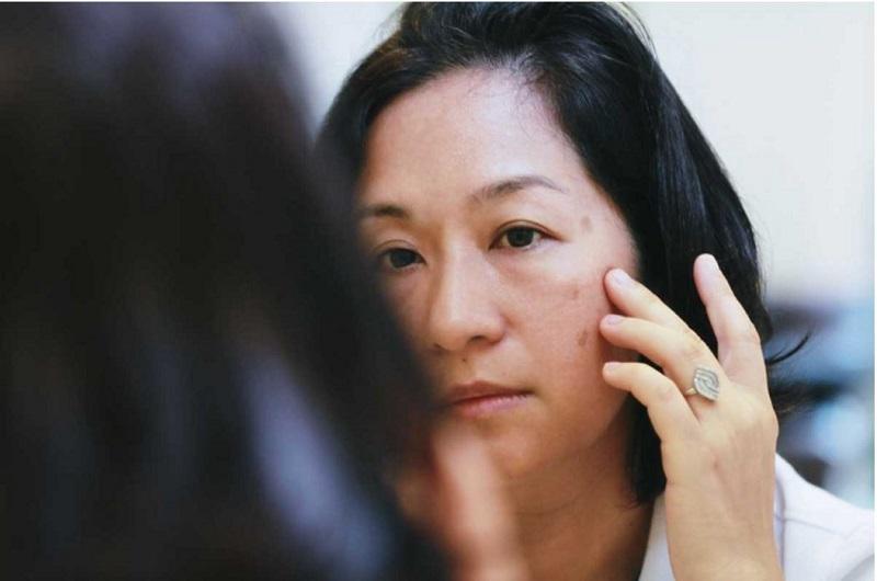 Thời kỳ mang thai, sau sinh và mãn kình là nguyên nhân gây ra nám da tàn nhang